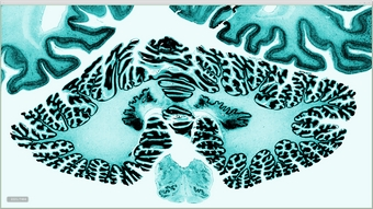 3D digital brain
