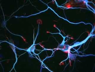 Neruodegenerative diseases