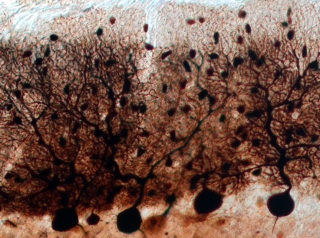 Neurons in the cerebellum.  CREDIT: Bowie Lab/McGill University