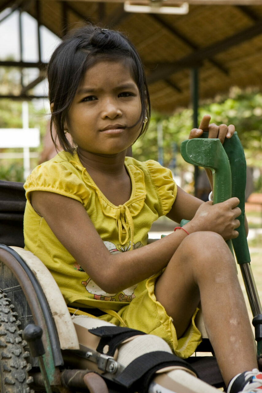 Polio girl (Image: RIBI Image Library/flickr)