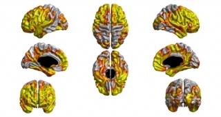 Credit: Molecular Psychiatry, S Karama, IJ Deary et al.
