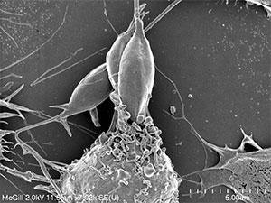 Le parasite de Leishmaniose (centre) en train d'être ingéré par un macrophage –  un type de cellule immunitaire qui se trouve être la première ligne de défense de notre corps contre les organismes étrangers.