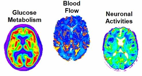 _brain_scans_alan_evans_002